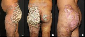 A 26-year-old male farmer presented a verrucous plaque in the left side of the buttock (A), that spread to the right one (B). A marked improvement of the skin lesions caused by M. tuberculosis was observed after treatment, performed with rifampicin, isoniazid, pyrazinamide and ethambutol during six months.