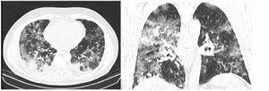 """RAD-Covid Score 3. Male patient, 67 years old, with 5 days of symptoms and Covid-19 infection confirmed by rt-PCR. Extensive pulmonary involvement (> 50%). In this case, we see ground-glass opacities, consolidations, septal thickening, and """"crazy paving"""" pattern occupying more than 50% of the total lung volume, with bilateral, peripheral, and central distribution."""