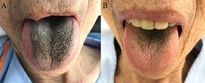 (A) Black hair-like lesion appeared on the dorsal aspect of the patient's tongue 28 days after starting metronidazole treatment. (B) Both black discoloration and hair-like appearance on the patient's tongue were improved 14 days after discontinuing metronidazole treatment.