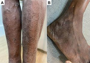 (A) Multiple ichthyosis in islets in the lower limbs; (B) linear thickening of right superficial fibular nerve.