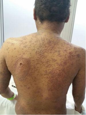 Skin lesions relapse.