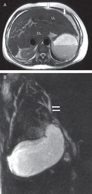 (A) Axial T2 weighted magnetic resonance imaging of the abdomen showing liver enlargement with increased left (LL) and caudate (CL) lobes, associated to slightly irregular contours (arrows). (B) Magnetic resonance cholangiopancreatography showing normal gallbladder and slight focal dilatation of the biliary tree (arrows) in the right hepatic lobe without biliary obstruction.