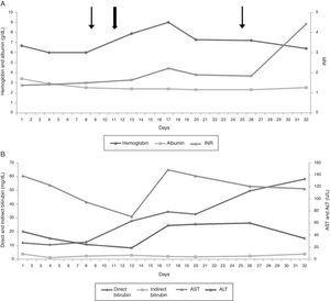 (A) Evolution of albumin (g/dL), hemoglobin (g/dL) and international normalized ratio (INR) during hospitalization. (B) Evolution of direct and indirect bilirubin levels (mg/dL), aspartate aminotransferase (AST - U/L) and alanine aminotransferase (ALT - U/L) during hospitalization. Narrow arrows refer to red blood cell transfusions and the wide arrow indicates exchange blood transfusion (EBT).