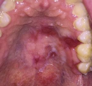 Generalized erythroleukoplakia with focal ulcerations affecting the hard and soft palate.