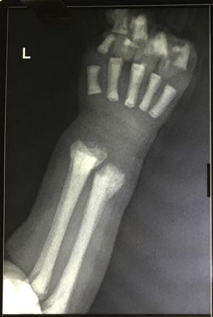 X-ray anterior–posterior view of the forearm – bone in bone appearance.