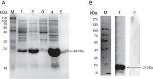 Expression of the recombinant protein PagC and Western blot analysis. (A) Proteins were separated on 12% acrylamide gel and stained with Coomassie blue. Lane M, molecular mass markers (Blue Plus II Protein Marker, TransGen Biotech, Beijing, China)&#59; lane 1, cells carrying the vector with the insert before IPTG induction&#59; lane 2, total cellular protein after IPTG induction&#59; lane 3, supernatant of cells ultrasound pyrolysis products after IPTG induction&#59; lane 4, sediment of cells ultrasound pyrolysis products after IPTG induction&#59; lane 5, the purified protein. (B) Western blot analysis using Goat anti Rabbit HRP-IgG monoclonal antibody. Lane M, molecular mass markers (PageRuler Prest Protein Ladder, Fermentas, Shanghai, China)&#59; lane 1, western blot analysis using antiserum to recombinant protein&#59; lane 2, western blot using pre-immune serum.