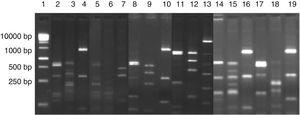 Digestion profile of lactic acid bacteria isolated from cassava fermentation in a cassava flour manufacturer. Lanes: 1: 1kb DNA ladder&#59; 2–4: Lactobacillus brevis profile (2-MspI, 3-HaeIII, 4-HinfI)&#59; 5–7: Lactobacillus fermentum profile (5-MspI, 6-HaeIII, 7-HinfI)&#59; 8–10: Lactobacillus plantarum profile (8-MspI, 9-HaeIII, 10-HinfI)&#59; 11–13: Lactobacillus casei/L. paracasei profile (11-MspI, 12-HaeIII, 13-HinfI)&#59; 14–16: Lactobacillus harbinensis (14-MspI, 15-HaeIII, 16-HinfI)&#59; 17–19: Lactobacillus parabuchneri profile (17-MspI, 18-HaeIII, 19-HinfI).
