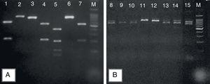 Representative 2% agarose gel of Candida parapsilosis sensu lato, after specific PCR reactions. (A) Products obtained after the digestion of sadh gene – PCR fragments by the BanI restriction enzyme distinguishing the cryptic species: C. parapsilosis sensu stricto (lines 1, 4, 7); C metapsilosis (line 5); and C. orthopsilosis (lines 2, 3, 6); (B) the band patterns of 716bp, obtained after sadh gene PCR reaction, suggestive of C. parapsilosis sensu lato (lines 11 and 12) and unspecific band patterns obtained for Candida guilliermondii (lines 8, 9, 10, 13, 14 and 15). Molecular marker: 1000bp.
