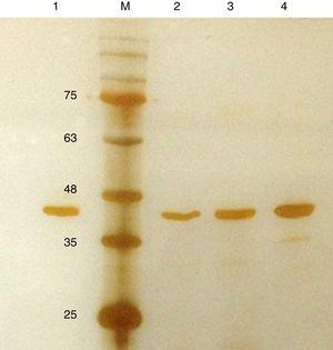 Silver stained SDS–PAGE gel of the purified in-house RecA and commercial RecA proteins. Note that the purity of the RecA is >95% as judged by the silver stained gel. Lane 1: commercial RecA (0.25μg)&#59; lane 2: in-house purified RecA (0.2μg)&#59; lane 3: in-house purified RecA (0.5μg)&#59; lane 4: in-house purified RecA (1.0μg). M: pre-stained protein MW marker (11–180kDa).