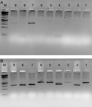 HLA-PCR of Class I and Class II antigens by PCR. Panel A shows PCR without RecA, and panel B shows HLA PCRs with RecA. Lane 1: HLA-A-Exon 2 (478bp)&#59; lane 2: HLA-A-Exon 3 (327bp)&#59; lane 3: HLA-B-Exon 2 (469bp)&#59; lane 4: HLA-B-Exon 3 (371bp)&#59; lane 5: HLA-C-Exon 2 (489bp)&#59; lane 6: HLA-C-Exon 3 (500bp)&#59; lane 7: DPB1, Exon 3 (368bp)&#59; lane 8: DQB1, Exon 3 (350bp)&#59; lane 9: DRB1 Exon 3 (351bp)&#59; lane 10: DNA molecular weight marker (100bp ladder).