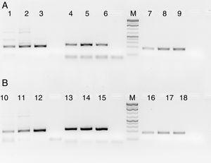 PCR products of three HIV, HBV and HCV samples with and without RecA. Panel A shows PCR without RecA, while panel B shows PCR with RecA. Lanes 1, 2, 3, 10, 11 and 12 are HIV samples&#59; lanes 4, 5, 6, 13, 14, and 15 are HBV samples&#59; lanes 7, 8, 9, 16, 17, and 18 are HCV samples. RT-PCR was performed for the HIV and HCV samples as described in the M & M section, while for HBV, regular PCR was performed as per the protocol described in the M & M section.