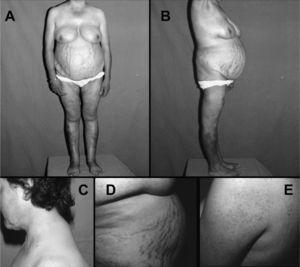 """Paciente con síndrome de Cushing por adenoma suprarrenal. Nótese la obesidad troncular con atrofia muscular proximal (A y B), la acumulación de grasa supraclavicular y """"giba de búfalo"""" (C), la presencia de estrías abdominales vinosas gruesas (D) y foliculitis cutánea en espalda y brazos (E)."""