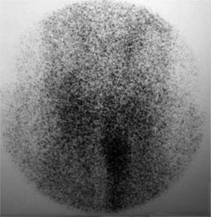 Gammagrafía tiroidea: ausencia de captación del trazador en el lecho anatómico tiroideo.