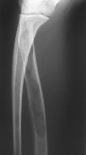 Radiografía de antebrazo que evidencia la afección del radio.