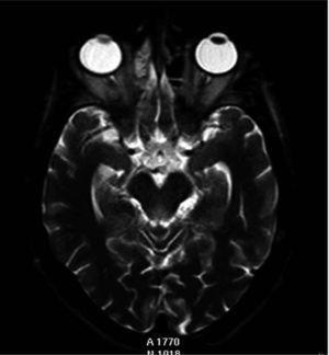 Imagen axial TSE-T2 single shot que muestra el mesencéfalo, donde se observa una hiperintensidad de señal periacueductal