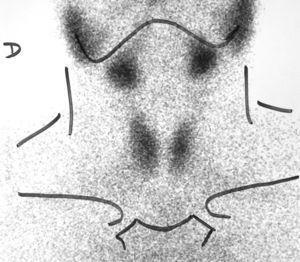 Gammagrafía Tc-99 que muestra hipocaptación difusa homogénea.