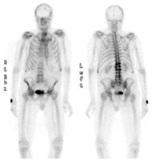 Lesiones óseas en gammagrafia.