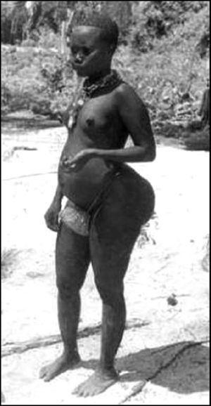 Mujer de la etnia sudafricana Hottentot/Khoisan, con la característica acumulación de grasa en las nalgas.