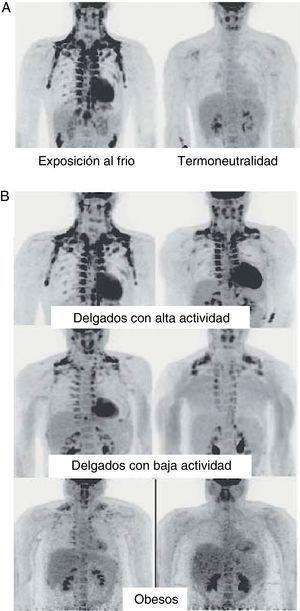 Distribución y actividad del TAM en humanos detectada mediante tomografía por emisión de positrones (PET) con 18F-FDG. A)Incremento de la actividad del TAM en un individuo delgado expuesto a baja temperatura (16??C) o en condiciones de termoneutralidad. B)Actividad del TAM en individuos delgados y obesos expuestos a baja temperatura (16??C).Fuente: Van Marken Lichtenbelt et al.25