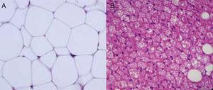 Imagen con microscopio óptico de tejido adiposo blanco (A) y tejido adiposo marrón (B).