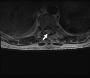 Corte axial de RMN: columna lumbar de D5-D11.