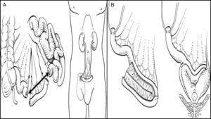 A. Conducto ileal. B. Neovejiga ileal ortotópica. Tomado de: Parekh y Donat.1