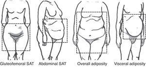 Visual classification of body fat according to its distribution. Adapted from Foster et al.8. SAT, subcutaneous white adipose tissue.