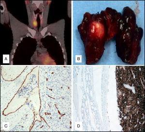 A) SPECT-TAC tras administración de tecnecio-99m: lavado incompleto de la captación en la imagen tardía. B) Pieza quirúrgica: lóbulo tiroideo derecho con disección longitudinal. C) Técnica inmunohistoquímica para CD31 que marca el endotelio vascular. Placas celulares tumorales penetrando en el interior del vaso. D) Técnica inmunohistoquímica para PTH. Lesión intratiroidea: tumor intensamente positivo, que contrasta con la negatividad del resto del tiroides.