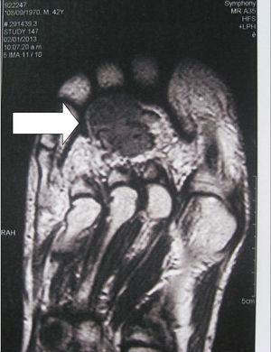 Tumor mesenquimal fosfatúrico de localización plantar. La RNM muestra una lesión heterogénea de baja intensidad, bordes irregulares, de 2×3cm aproximadamente.