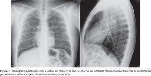 Radiografía posteroanterior y lateral de tórax en la que se observa un infiltrado reticulonodular bilateral de localización predominante en los campos pulmonares medios y superiores.