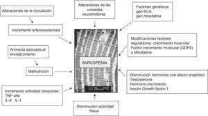 Factores implicados en el desarrollo de la sarcopenia.