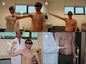 A) Maniobra de Jobe. B) Maniobra del brazo caído. C) Maniobra de Patte. D) Rotación externa contra resistencia.