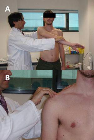 A) Maniobra de O'Brien. B) Palpación directa de la articulación acromioclavicular.