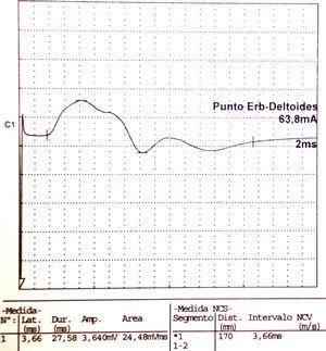 Electroneurografía motora del n. axilar del mismo paciente con reducción en la amplitud de las respuestas obtenidas tras la estimulación. La EMG de aguja que se realizó mostró intensos signos de denervación activa (sugerente de neuropatía axonal) en la musculatura dependiente de este nervio: deltoides.