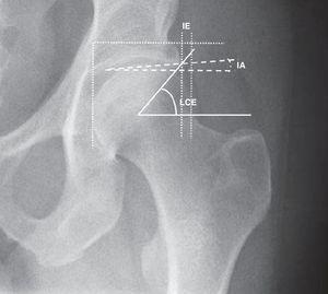 Cuantificación del AFA tipo pincer: ángulo lateral center edge (LCE), índice acetabular (IA) e índice de extrusión (IE) de la cabeza femoral.