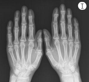Imagen de anquilosis en la quinta interfalángica distal izquierda. En la radiografía conviven alteraciones articulares en diferentes estadios.