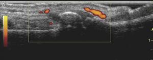 Ecografía que muestra erosiones y sinovitis con señal power doppler, en una paciente con artrosis erosiva de las manos.