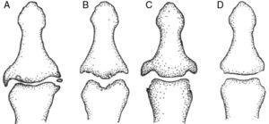 Características radiológicas diferenciales a nivel de las interfalángicas distales. A) Artrosis no erosiva: pinzamiento articular focal, osteofitos marginales, esclerosis. B) Artrosis erosiva: erosiones centrales subcondrales, proliferación ósea marginal. C) Artritis psoriásica: erosiones marginales proliferativas. D) Artritis reumatoide: erosiones marginales no proliferativas, osteopenia yuxtaarticular. (De Zhang et al.1).