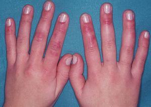 Lesiones típicas de perniosis idiopática: pápulas y nódulos violáceos en el dorso y en la cara lateral de los dedos de las manos en un paciente joven que por otra parte no tiene otra enfermedad acompañante.