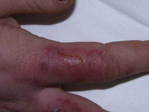 Ampollas y pequeñas erosiones sobre lesiones de perniosis.