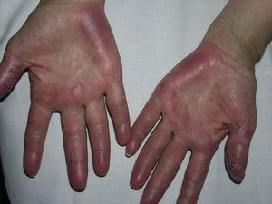 Lesiones cutáneas específicas de lupus eritematoso en las palmas que simulan una perniosis. A diferencia de esta, las lesiones en este caso son persistentes y no siguen un ritmo estacional.
