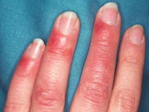 Paciente con lupus eritematoso cutáneo subagudo, con anticuerpos anti-Ro en sangre periférica, que durante los meses de invierno desarrolla lesiones eritematosas en los dedos de las manos tipo perniosis (perniosis lúpica).