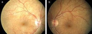 Retinografía en paciente con síndrome de Vogt-Koyanagi-Harada precoz (a: ojo derecho, b: ojo izquierdo). Se observan abundantes pliegues maculares que son compatibles con desprendimiento de retina exudativo en ambos ojos. La papila es de aspecto normal.