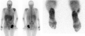 La gamagrafía con Ga67 permite detectar la afectación politópica. Artritis séptica de hombro izquierdo, trapecio, metacarpiana derecha, osteomielitis del 2.° dedo del pie derecho e infección sobre osteosíntesis de cadera izquierda.
