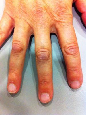 Nódulos de Garrod en el dorso de las articulaciones metacarpofalángicas proximales de la mano.