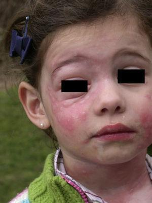 Intense contact urticaria with associated angioedema on the face and neck of a 5-year-old girl after playing in a sandpit close to pines infested with Thaumetopoea pityocampa.