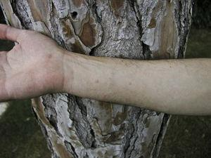 Contact urticaria on the forearm of a resin collector sensitized to Thaumetopoea pityocampa (positive skin prick test and detection of specific IgE in serum).