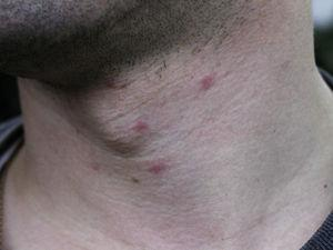 Inflammatory, infiltrated papules on the neck. They appeared on the day after a walk through a pine forest and persisted for 4 or 5 days with severe itching.