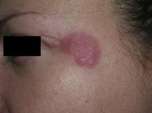 Characteristic lesions of lupus erythematosus tumidus on the face.