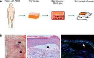 Development of humanized models of rare skin diseases. (A) Human skin regenerated in immunodeficient mice from cells obtained from patients with recessive dystrophic epidermolysis bullosa (RDEB) reproduces the phenotype of this severe disease (B) as evidenced clinically and histologically by the presence of blisters (hematoxylin–eosin, ×20) (as indicated by asterisks) and the presence of type VII collagen in the roof of the blisters (type VII collagen, ×20).